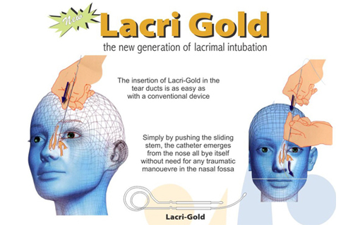 lacrimal intubation set lacri gold